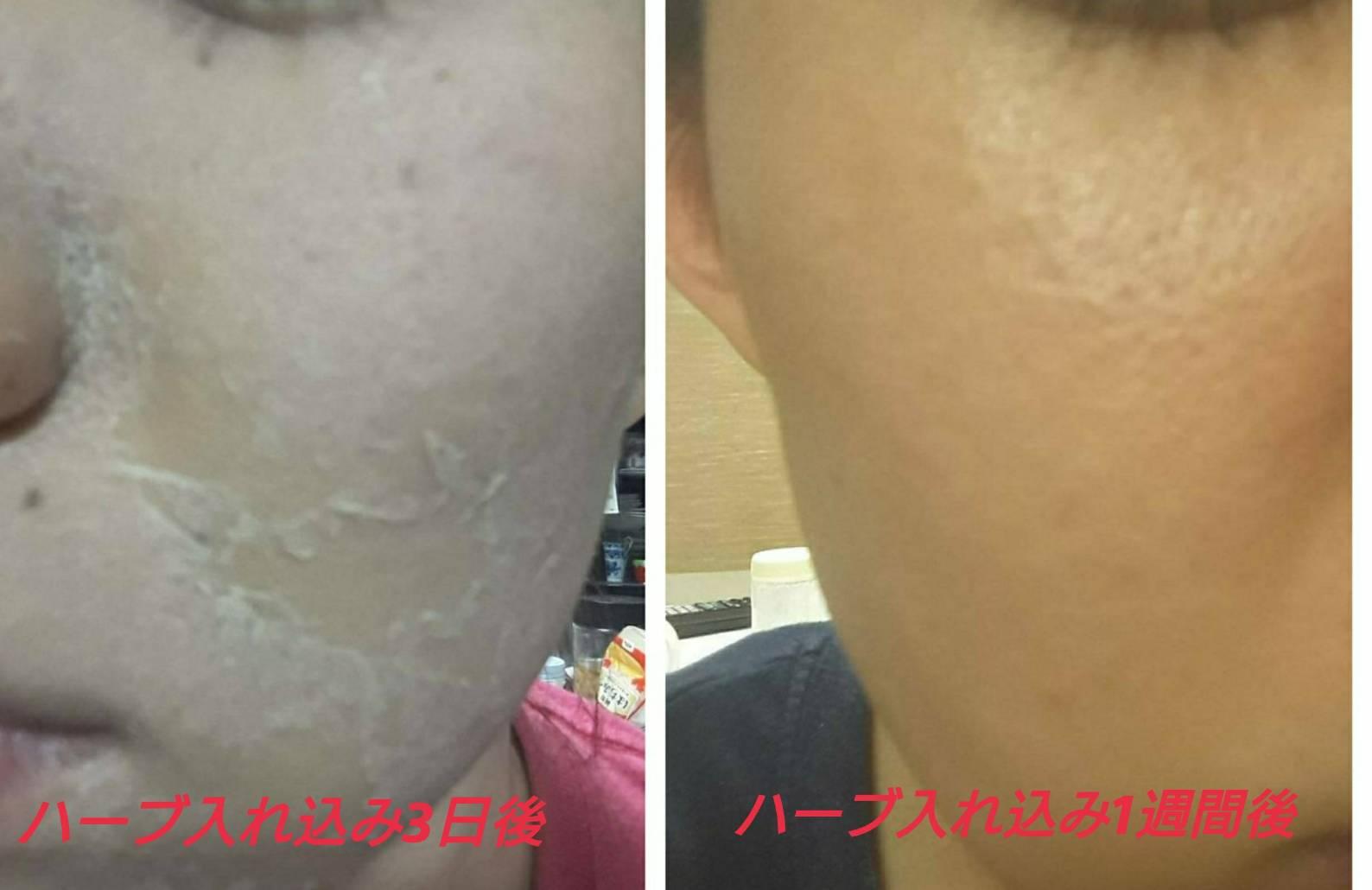 【ニキビ改善・美肌再生】TIPハーブピーリング